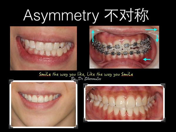 Braces Asymmetry