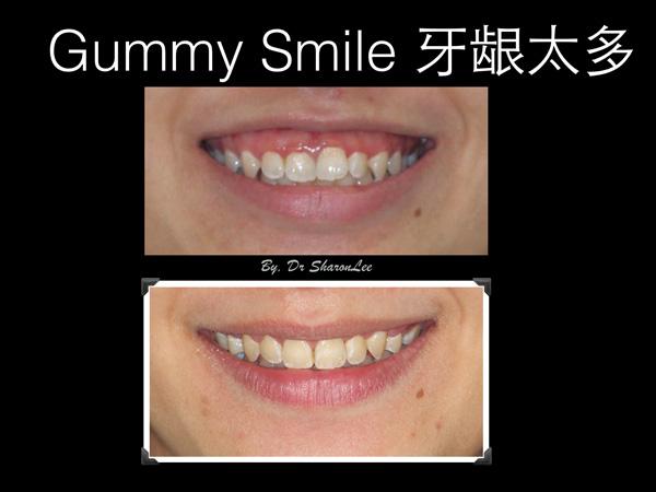 Braces Gummy smile corretion