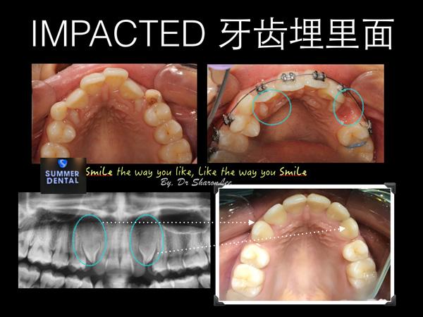 Braces Impacted Teeth
