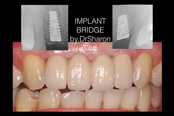 Implant Bridge-2