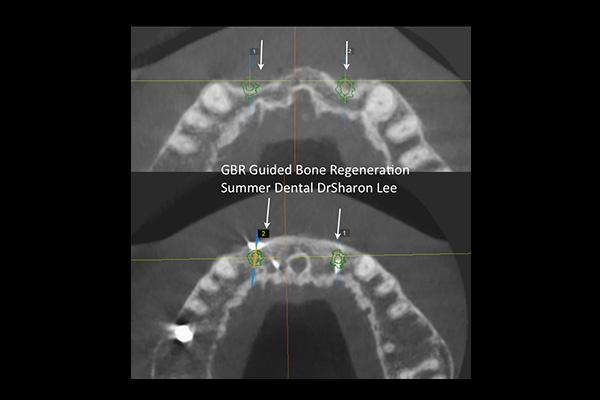 Implant Guided Regeneration