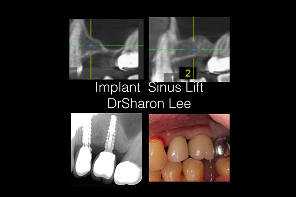 Implant Sinus Lift
