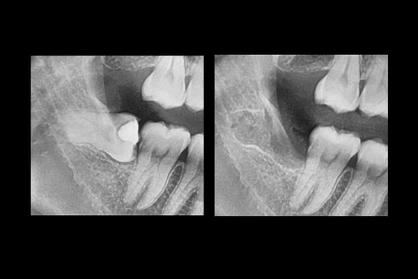 Wisdom tooth surgery-3